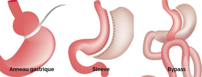 différentes techniques de réduction de l'estomac