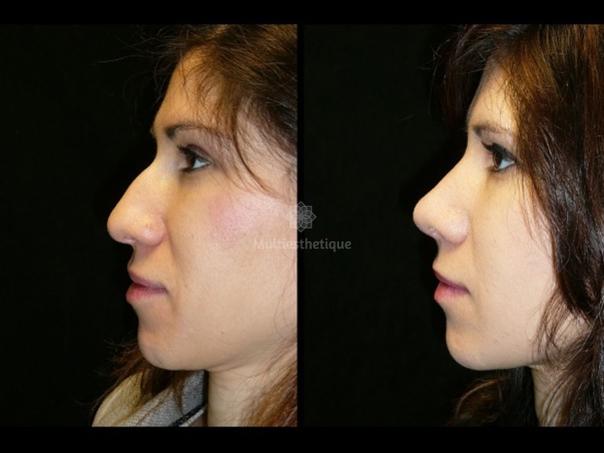 avant / après rhinoplastie