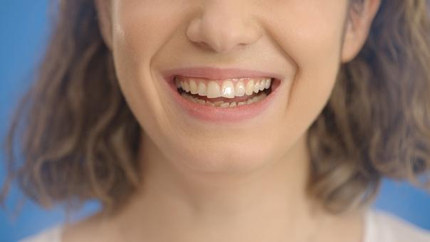 lèvres inégales et asymétriques