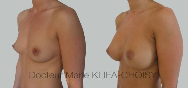 implants mammaires avant après