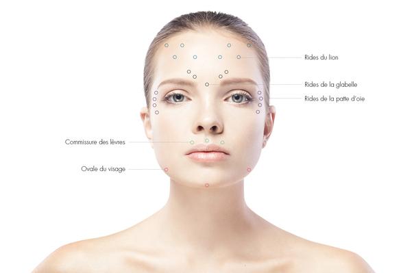 Utilisations du Botox
