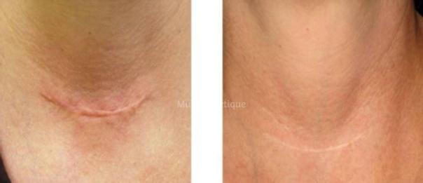 Traitement d'une cicatrice - Avant / après