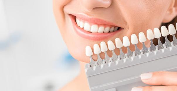 Nuancier de blanchiment dentaire