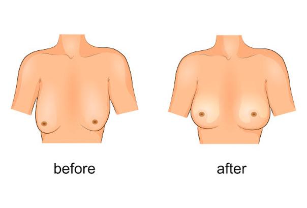 lifting mammaire pour seins tubéreux