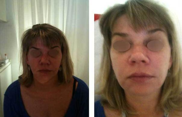 avant / après Chirurgie maxillo-faciale chez l'adulte