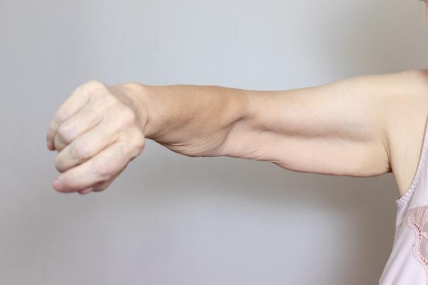 bras après perte de poids