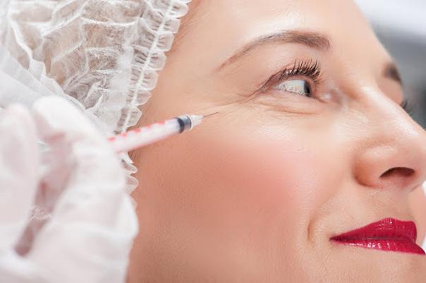 Injections de botox au coin de l'oeil