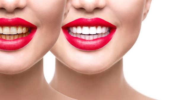 Gardez vos dents blanches