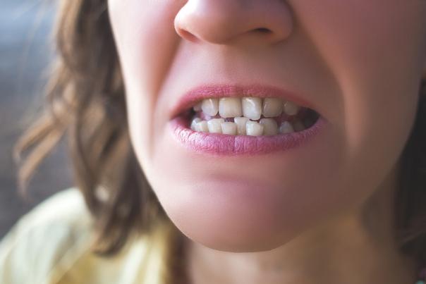 Les dents de travers