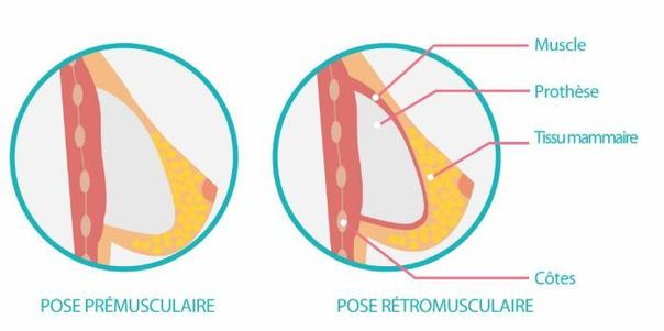 implantation de l'implant mammaire