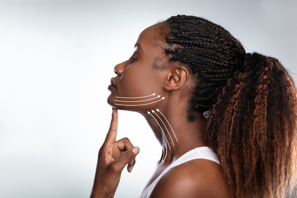 l'affaissement du cou