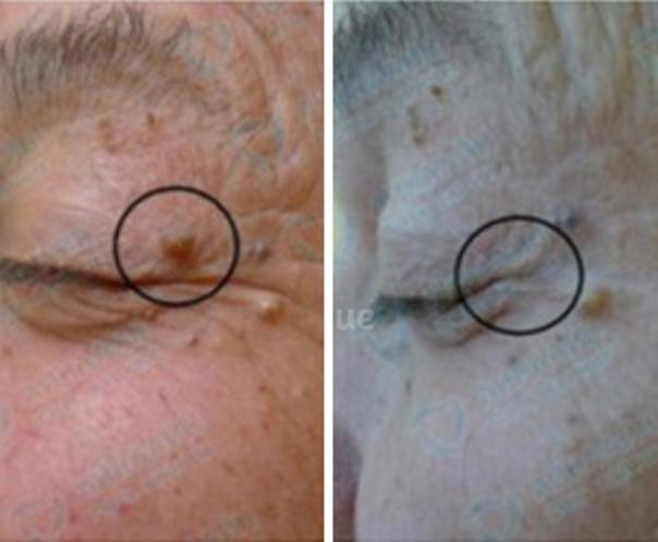 Avant / Après d'un traitement d'une verrue