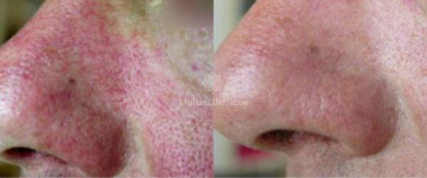 Exemple traitement rosacée