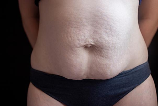 ventre atteint de diastase abdominale