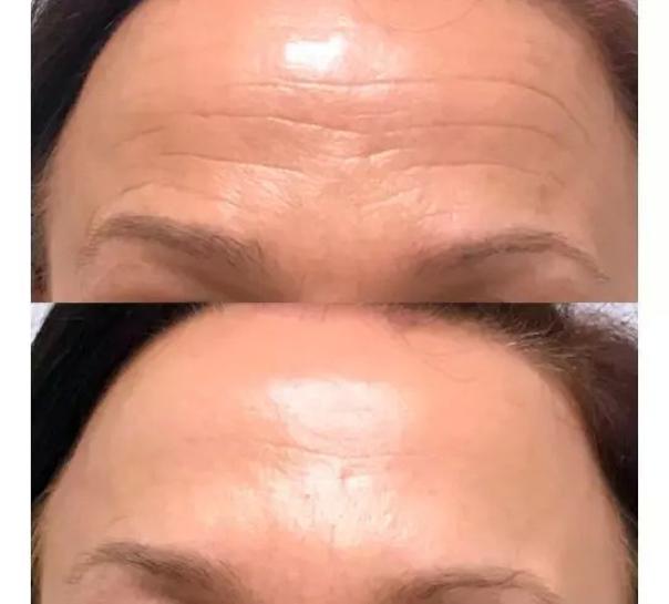 avant / après Botox nefertiti lift