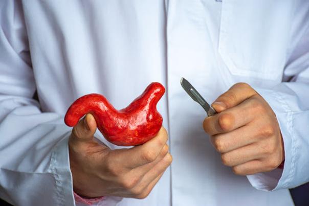 Les avantages de la sleeve gastrique