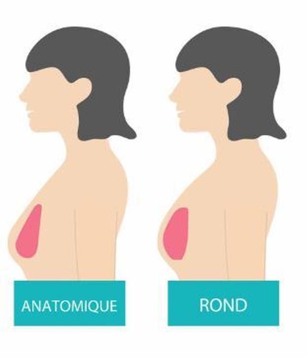 implants mammaires anatomiques ou ronds