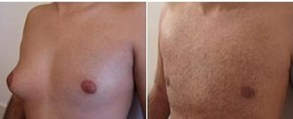 avant / après d'une gynécomastie