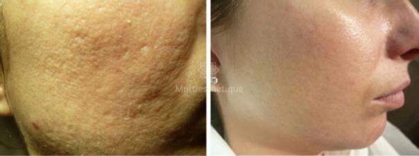avant / après traitement anti acné