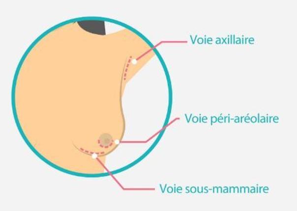 Les voies cicatricielles d'un implant mammaire