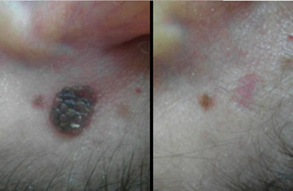 Avant / Après d'un traitement de verrue