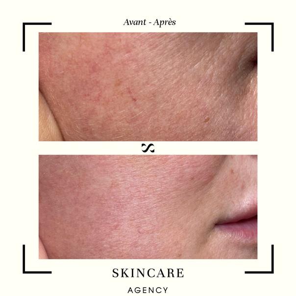 avant / après laser dermatologique