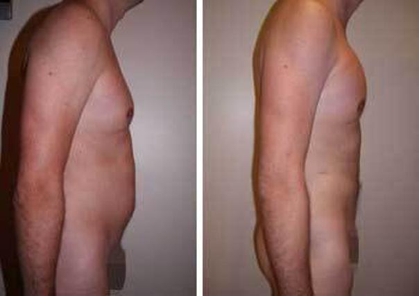 avant / après implants pectoraux