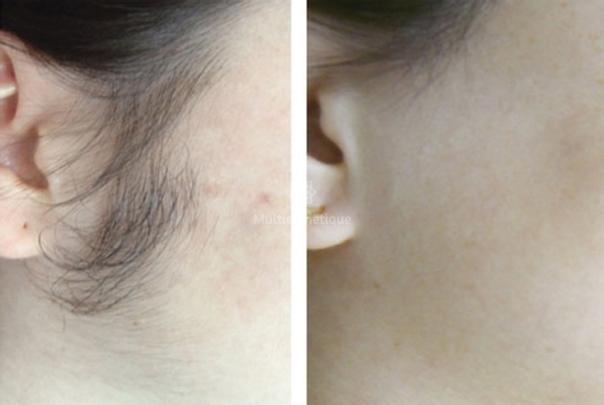 epilation laser avant / après
