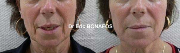 avant / après lipofilling du visage