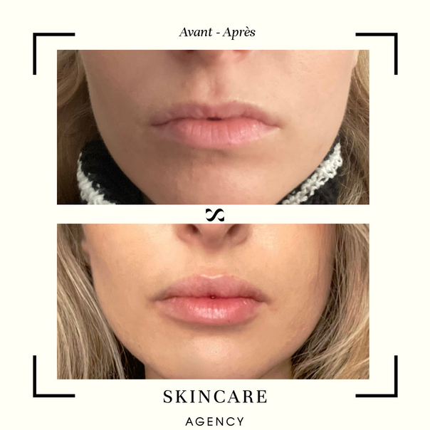 Avant / après augmentation des lèvres par lifting