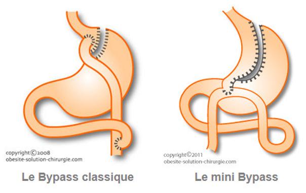 Bypass classique vs mini bypass