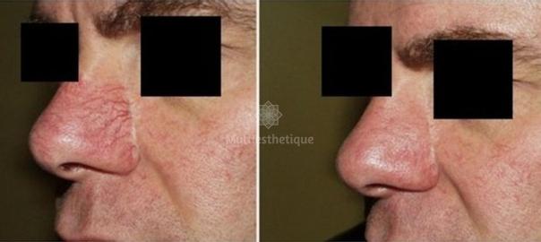 Le traitement au laser de la couperose : pour qui ?