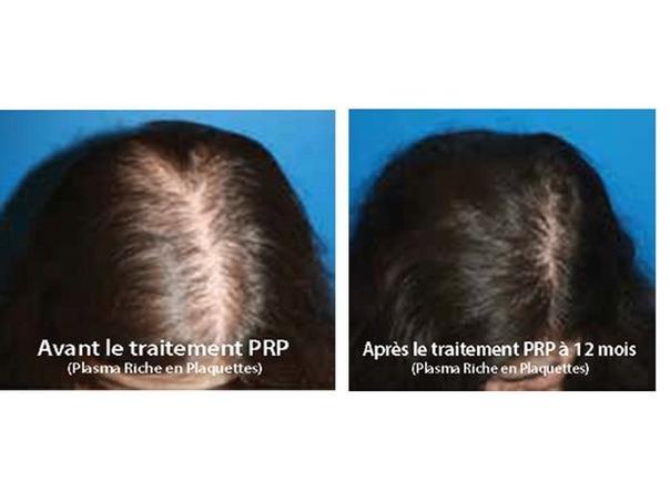 Traitement capillaire PRP