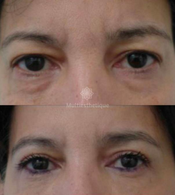 avant / après une blépharoplastie