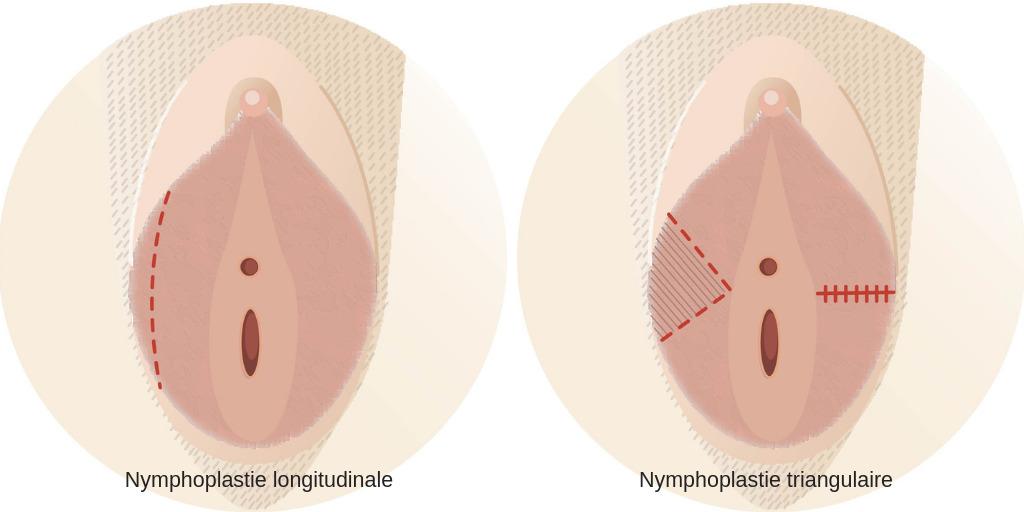 Nymphoplastie longitudinale VS Nymphoplastie triangulaire