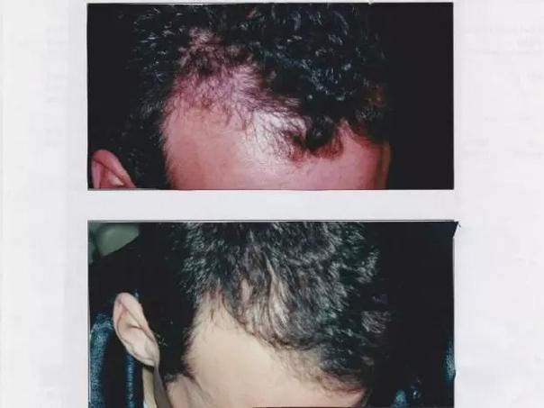 greffe de cheveux avant / après