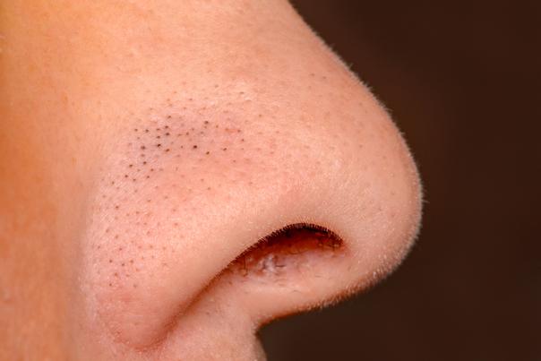 points noirs sur le nez