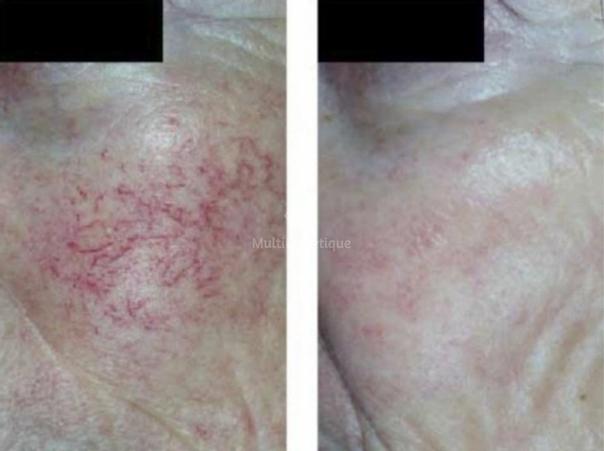 Postopératoire : traitement couperose