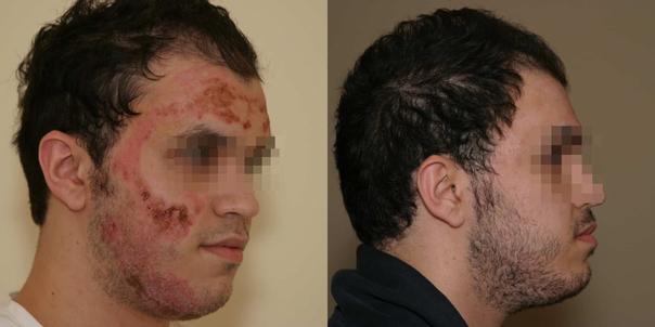 reconstruction de la face après une brûlure