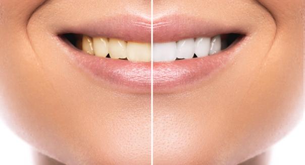 Blanchiment des dents avant / après