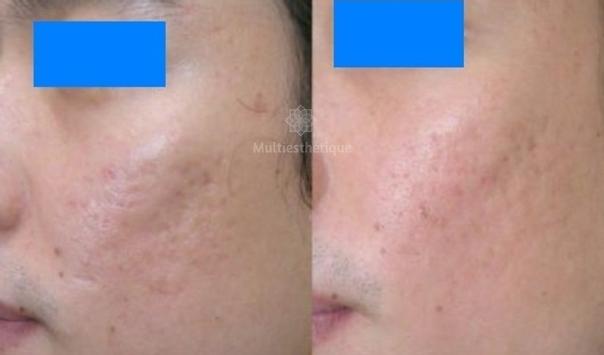 Traitement de cicatrice - Avant / après