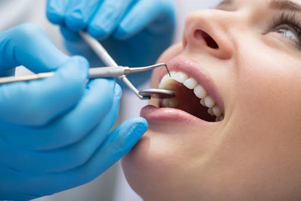 Blanchiment dentaire chez le dentiste