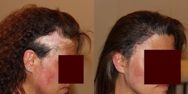 calvitie femme avant / après