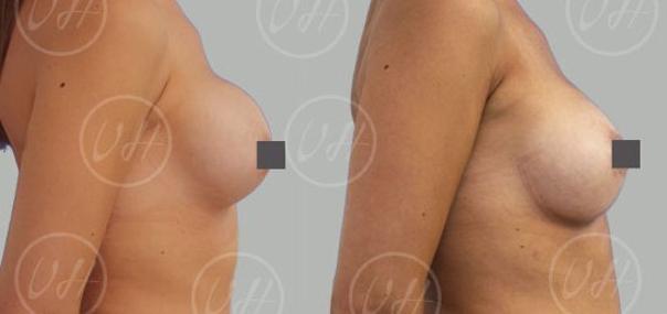 changement de prothèses mammaires avant après