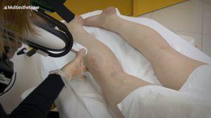 Traitement Laser Vasculaire