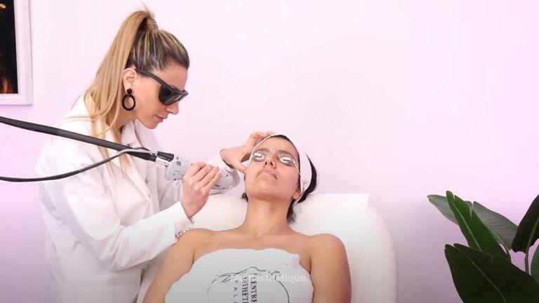 Skin Tightening - Resserrage des pores Au Laser