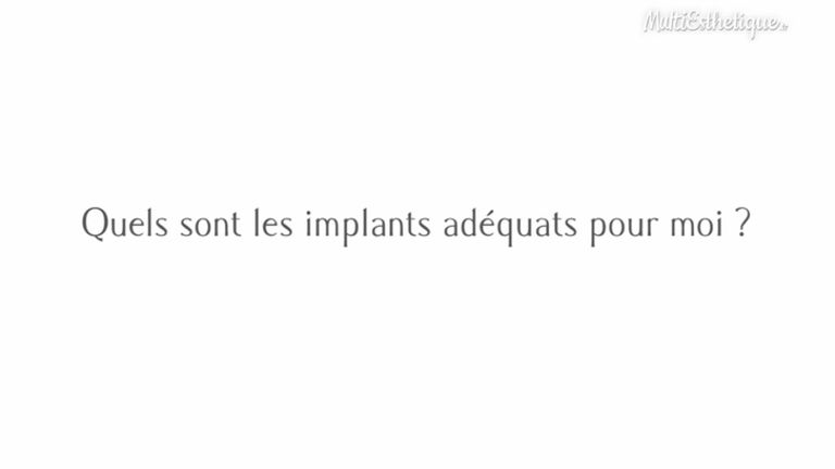 Quels sont les implants adéquats pour moi ?