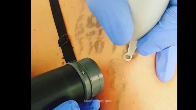 détatouage laser