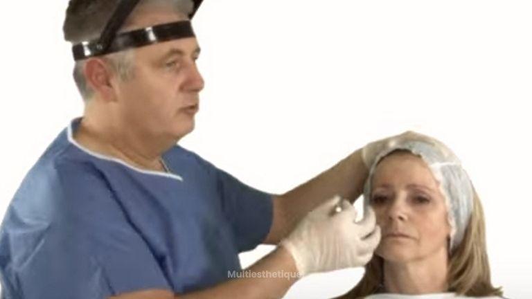 Injections de Botox dans la ride de la glabelle
