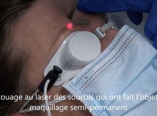 Détatouage au laser des sourcils qui ont fait l'objet d'un maquillage semi-permanent
